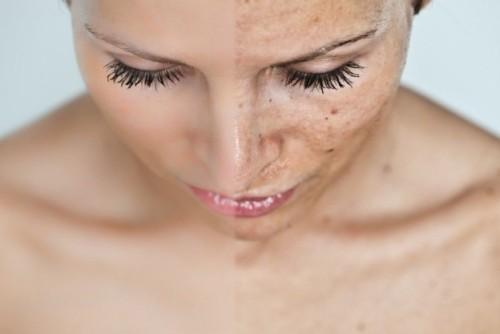 массаж против шрамов